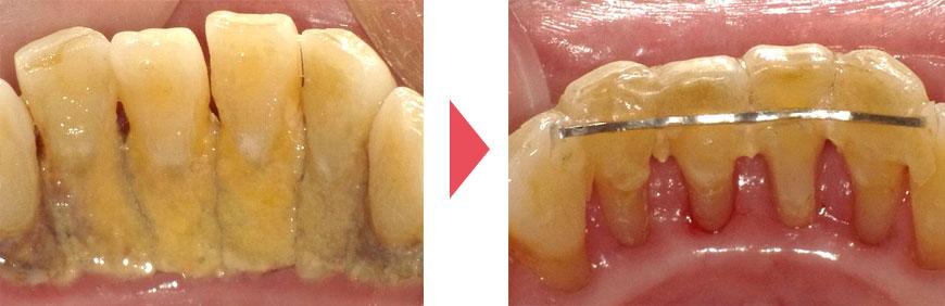 歯石除去前後