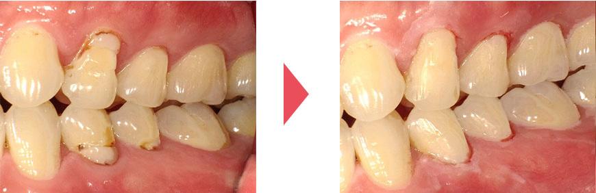 劣化した詰め物と歯の隙間から生じる虫歯の再発/白い詰め物で治療した後