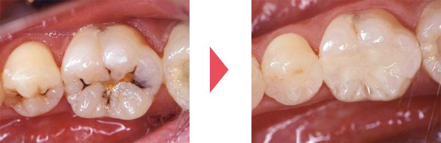 黒く虫歯になった歯/白い詰め物で治療した後