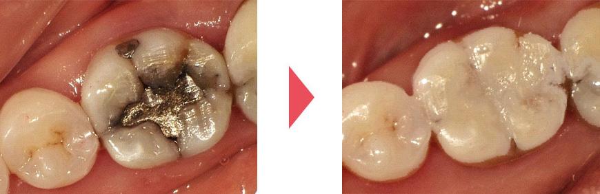 劣化した金属が詰めてある歯/白い詰め物で治療した後