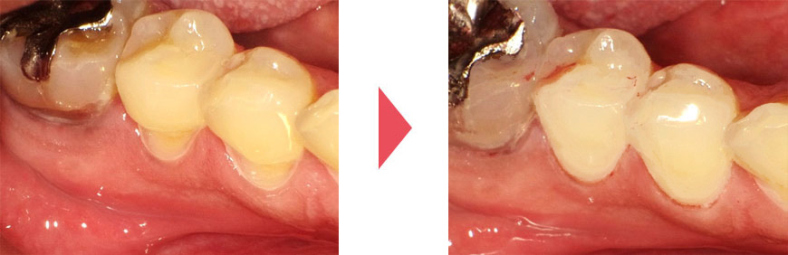歯ぎしり、食いしばりによる歯の破折、摩耗/ 白い詰め物で治療した後